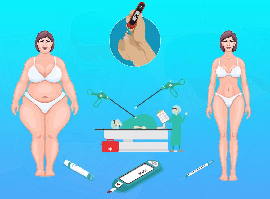 Diyabet Ameliyatı Öncesi ve Sonrası Yapılması Gerekenler