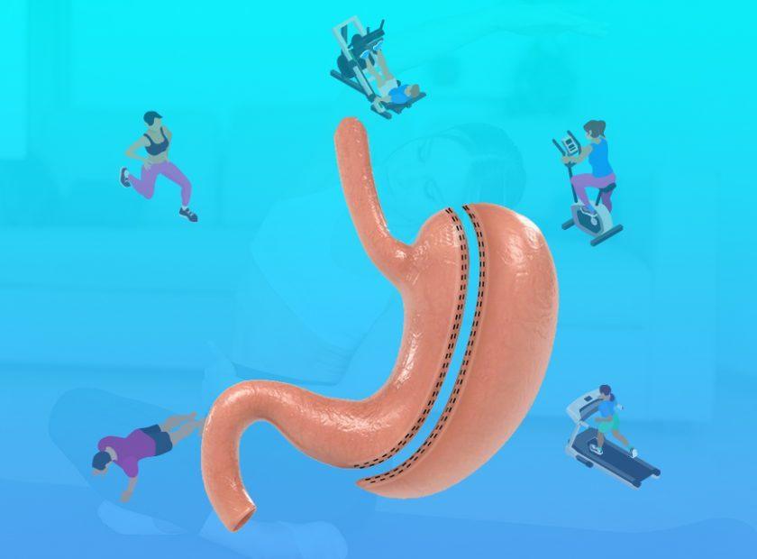 Mide Küçültme Ameliyatı Sonrası Hangi Egzersiz Yapılmalıdır?